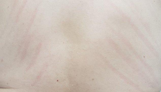 עור בריא עם סימני גרד מישניים