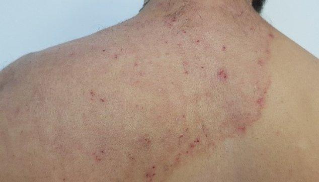 פטרת העור מפושטת המגרדת מאוד עם סימני גרד מישניים