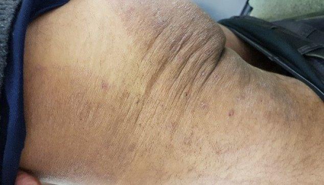 פטרת העור מפושטת המגרדת מאוד עם סימני גרד מישניים2