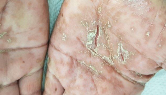 צורות קליניות  שונות  של  מחלות  הפסוריאסיס  בכפות הידיים