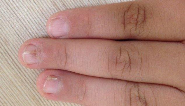 צורות קליניות  שונות  של  מחלות  הפסוריאסיס  בעור ובציפורניים