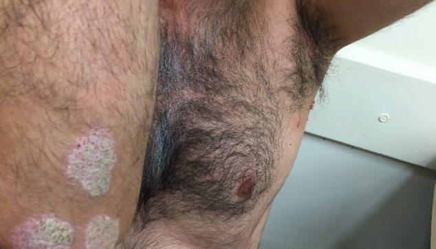 צורות קליניות  שונות  של  מחלות  הפסוריאסיס  בעור..