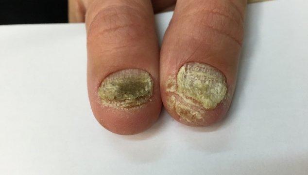 צורות קליניות של  מחלות  הפסוריאסיס  בציפורניים