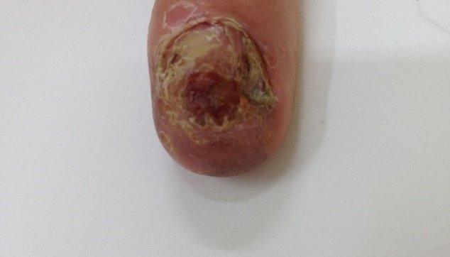 תמונות  קליניות של  סרטן  מסוג  SCC מתחת  לציפורן