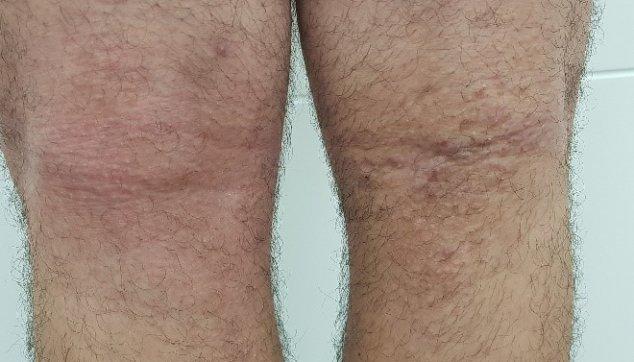 תמונות שונות של ליכניפיקציה בעור 1