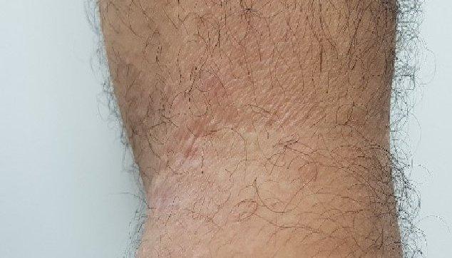 תמונות שונות של ליכניפיקציה בעור 2