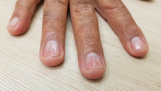 6 ציפורניים מבריקות  בחולי  אטופיק  דרמטיטיס