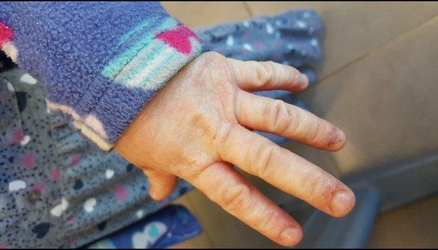 6 ציפורניים מבריקות  בחולי  אטופיק  דרמטיטס